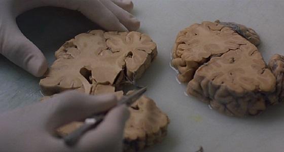 cannibal love trouble every day neurobiologia recensione lo specchio scuro
